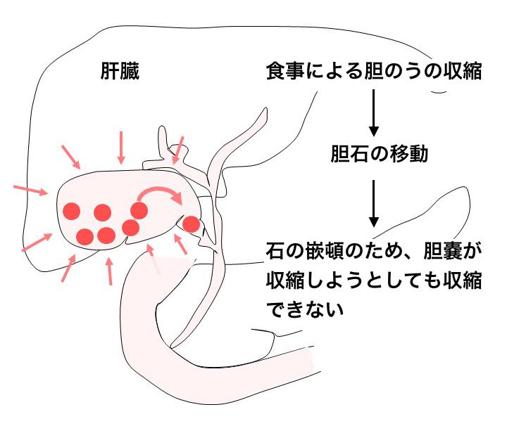 胆石症の症状